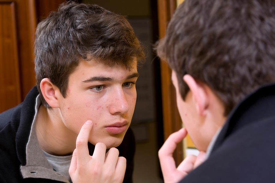 Helping Your Teen with Acne